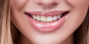 quickly whiten your teeth